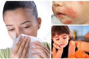Symptoms of an allergy